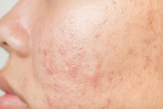 acne scar Treatment in KL