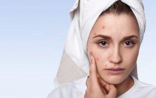 acne treatment kl