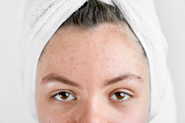 Acne Treatment KL in Malaysia